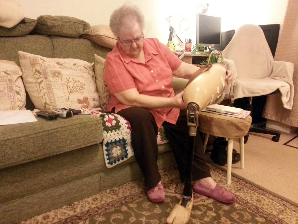 Woman donating a prosthetic leg