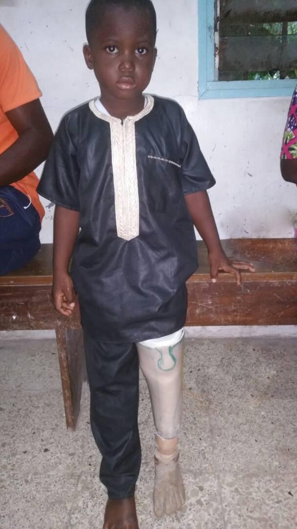 little boy amputee
